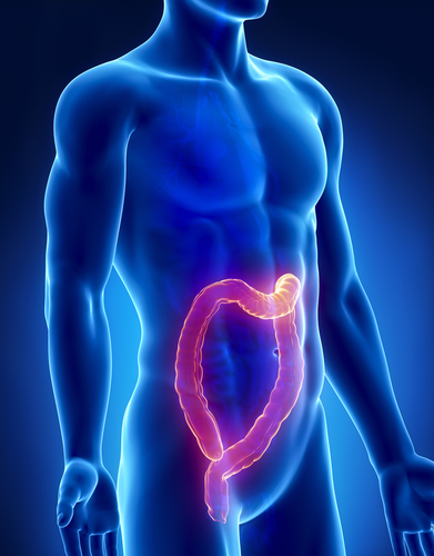 Replacing Guanylin Hormone Can Prevent Colon Cancer Development