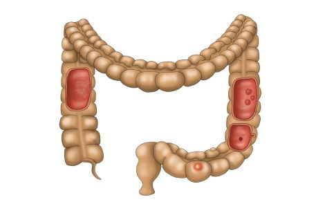 RLR Agonists Seen to Promote Immune Response Against Colon Cancer Cells in Early Study
